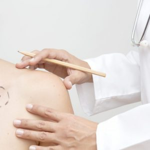 Dermatologist examines skin cancer, horizontal.
